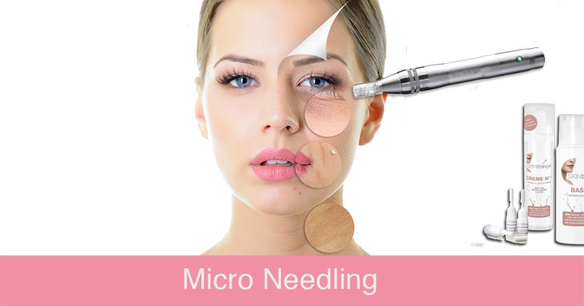 ausbildung-kosmetik-micro-needling-kosmetikschule-schaefer